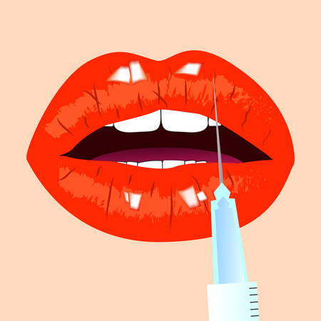 Lips and botox injection. Red lips. Beauty concept, vector illustration. Illustration
