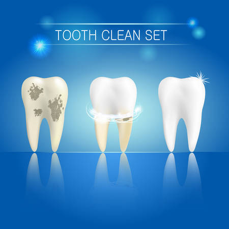 Set of clean and dirty tooth on blue background, clearing tooth process. Teeth whitening concept. Vector illustration Ilustrace