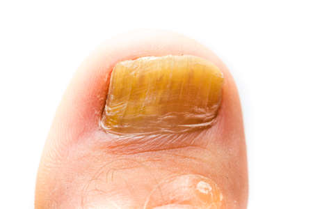 itraconazole: Fungus Infection on Nails, close up photo on white background