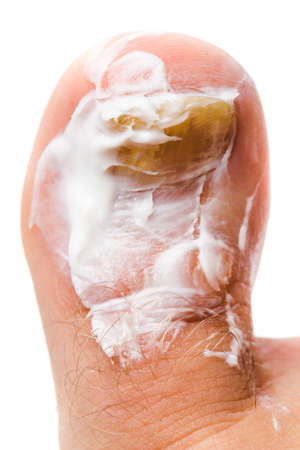 itraconazole: Fungus Infection on Nails plastered with medicinal cream, close up photo on white background.