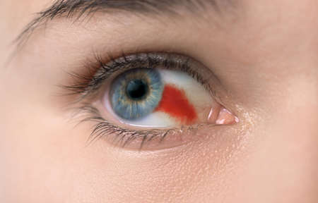 Young woman with burst blood vessel in eye, closeup