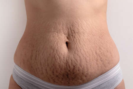 female belly with stretch marks 免版税图像