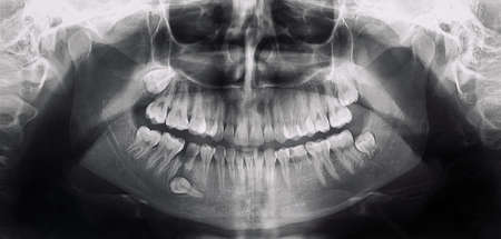 x-ray of the mouth with a problem tooth