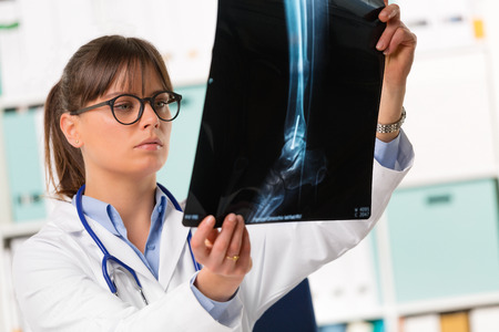 orthopedist: Half body portrait of young female doctor in white coat with stethoscope looking at patients x-ray Stock Photo