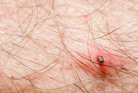 Tick parasite sucking blood from human skin. photo