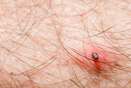 Tick parasite sucking blood from human skin.