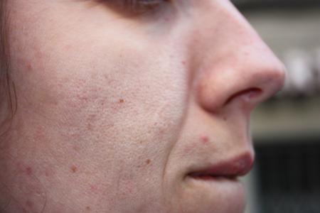 espinillas y poros dilatados. cuidado de la piel de una adolescente italiana