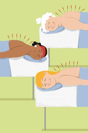 Three women of different age undergo an acupuncture treatment, EPS 8 vector illustration
