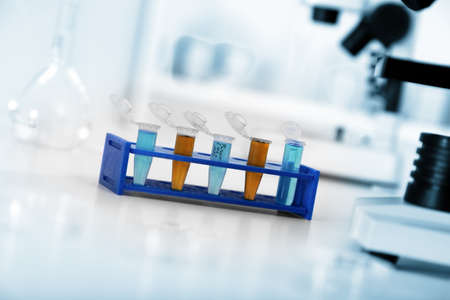blood test: Micro tubes with biological samples in laboratory for DNA analysis Stock Photo
