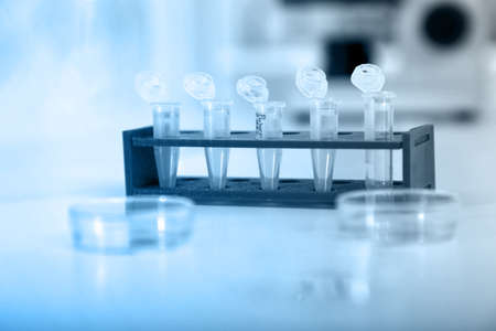 Micro tubes with biological samples in laboratory for DNA analysis photo