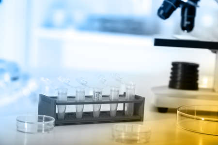 eppendorf: Micro tubes with biological samples in laboratory for DNA analysis Stock Photo