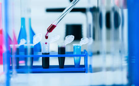 sample tray: Blood samples for research in microtubes Stock Photo
