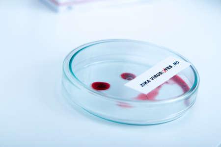 Blood sample positive with Zika virus.toned image. Stock Photo