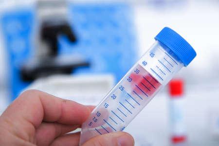 coronavirus: Micro tubes with  Blood sample positive with Zika virus.toned image. Stock Photo