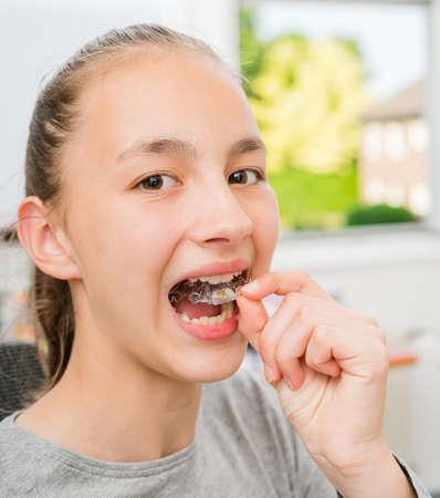 Teenager with braces on her teeth. 写真素材