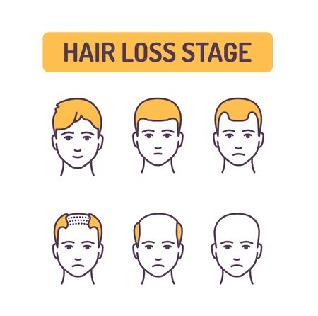 Hair loss stage color line icon. Stages at which the amount of hair on a person s head gradually decreases. Pictogram for web page, mobile app, promo. UI UX GUI design element. Editable stroke