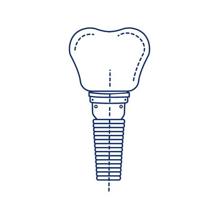 Dental implant tooth black line icon. Metal post that replaces the root portion of a missing tooth. Pictogram for web page, mobile app, promo. UI UX GUI design element. Editable stroke Ilustração