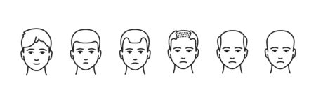 Hair loss stage black line icon. Stages at which the amount of hair on a person s head gradually decreases. Pictogram for web page, mobile app, promo. UI UX GUI design element. Editable stroke. Ilustrace