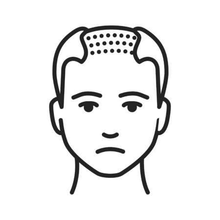 Man with a bald head black line icon. Baldness stage. Alopecia. Pictogram for web page, mobile app, promo. UI UX GUI design element. Editable stroke