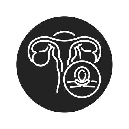 Female sterilization black glyph icon. Tubal ligation. Permanent contraception and birth control. Pictogram for web page, mobile app. UI UX GUI design element.