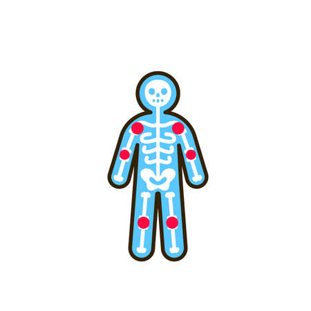 Arthritis human body line color icon. Inflammation joint. Sign for web page, mobile app, button. Editable stroke 向量圖像