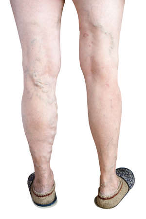 Ugly sick legs of an old woman on a white background. Phlebeurysm.