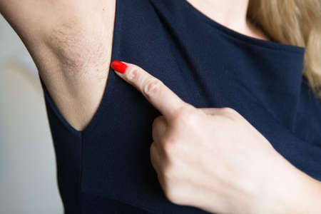 El dedo femenino muestra la axila sin afeitar. Cuidado del cuerpo.