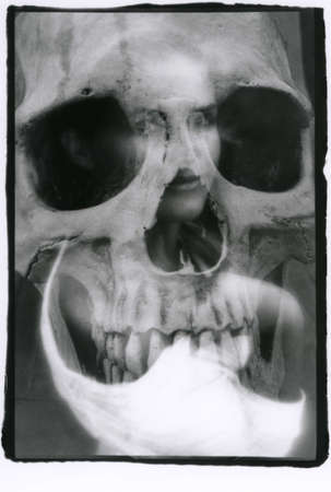 Portrait of a young beautiful woman and a human skull close up. Multiple exposure. Attention! The image contains grain and other artifacts from analog photography.