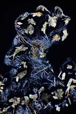 Photo through a microscope of crystals growing from a solution of succinic acid in alcohol. Polarized light technology.