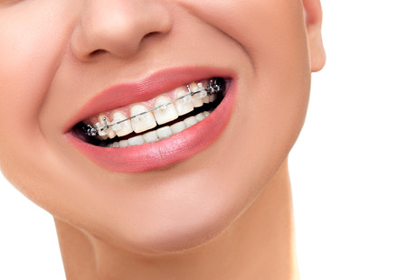 brackets: Closeup Beautiful Female Smile with Transparent Ceramic and Metal Braces on Teeth. Orthodontic Treatment.