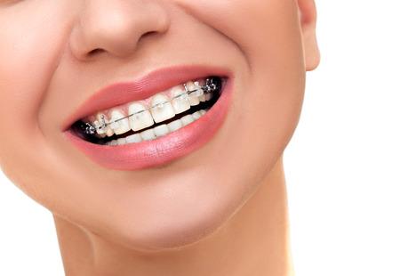 ceramics: Primo piano bel sorriso femmina con trasparenti in ceramica e metallo Bretelle sui denti. Trattamento ortodontico.