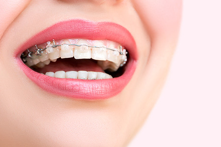 Close up open mouth with Ceramic and Metal Braces on beautiful Teeth. Broad Smile with Self-ligating Brackets