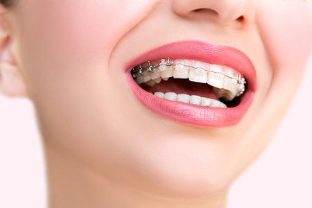 Schließen Sie herauf Keramik- und Metallklammern auf Zähnen. Schönes weibliches Lächeln mit selbstligierenden Klammern. Kieferorthopädische Behandlung