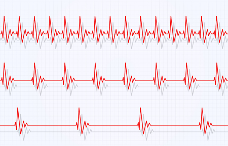 heart pulsating fast normal and slow graph