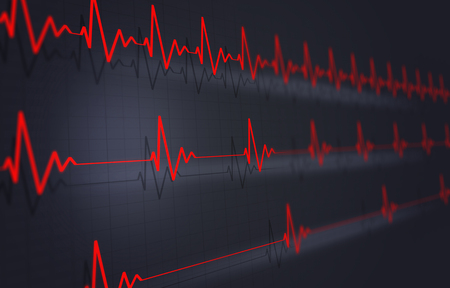 concept heart pulsating cardigram on dark background