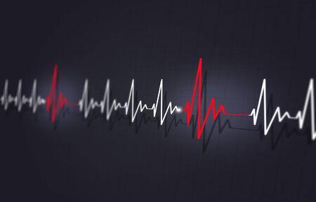 medicine illustration of heart disease irregular fast pulse Stock Photo