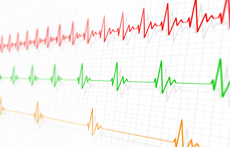 medicine illustration of different heart pulsatings fast normal and slow Stock Photo