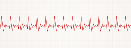 illustration of rapid irregular heart pulsating rhythm