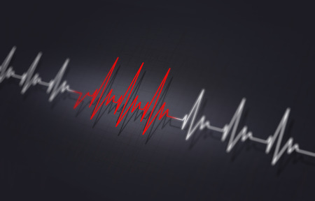arrythmia medical illustration of heart irregular pulsating Stock Photo
