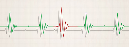 medicine banner illustrating irregular heart beat on ecg during monitor