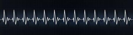 medical banner illustrating rapid heart pulse on ecg. heart rate more than 90 beats per minute. emotioanl stress, physical pressure, heart disease
