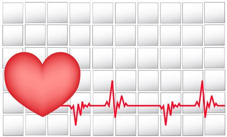 Electrocardiogram Stock Vector - 5637242
