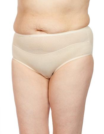 mujer celulitis: Las mujeres con celulitis en el est�mago