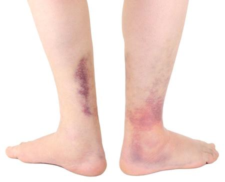 sprain: Ankle sprain  Stock Photo