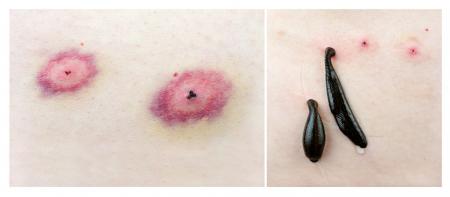sanguijuela: Sanguijuelas médicas y las huellas de su mordida