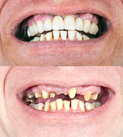 Dental rehabilitation
