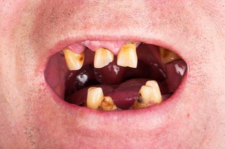 personne malade: De mauvaises dents, fumeur
