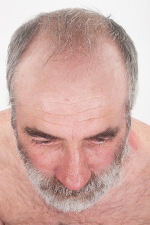balding: Balding man