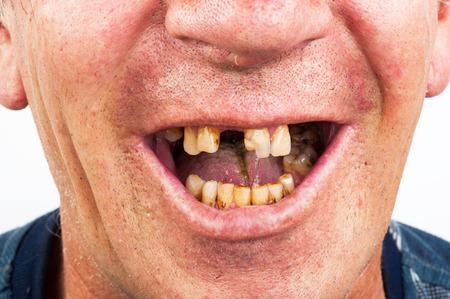 悪い歯、喫煙者 写真素材