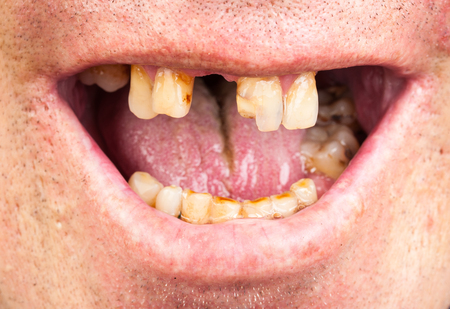 Bad teeth, smoker Zdjęcie Seryjne - 61198744